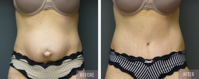tummy tuck before-after