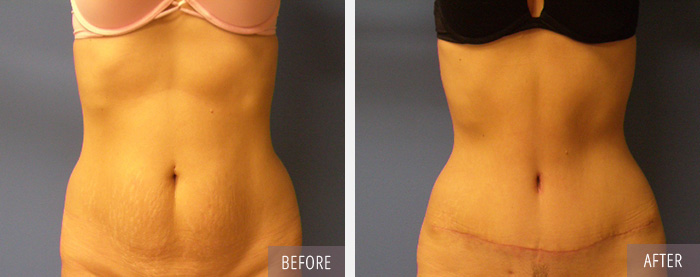 Tummy Tuck Procedure Performed by a board certified Plastic Surgeon in CT