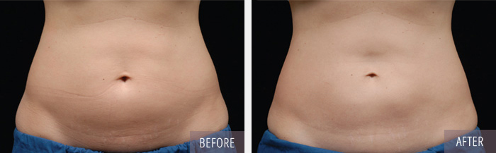 CoolSculpting_back_05