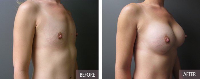 30 Year Old Breast Implants Before and After Picture