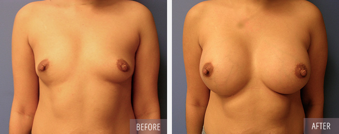 Breast implants at ESANA Plastic Surgery Center and MedSpa