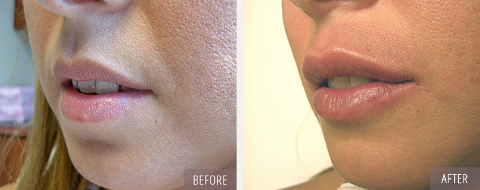 Injectables / Dermal Fillers - Before and After Picture 1