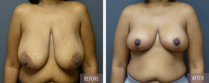 Esana_breast_reduction_0617
