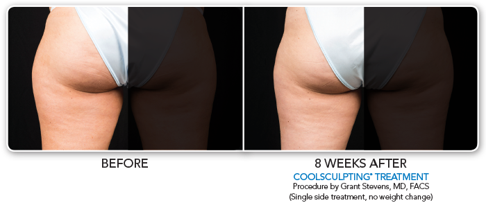 Coolsculpting LeftThigh-002
