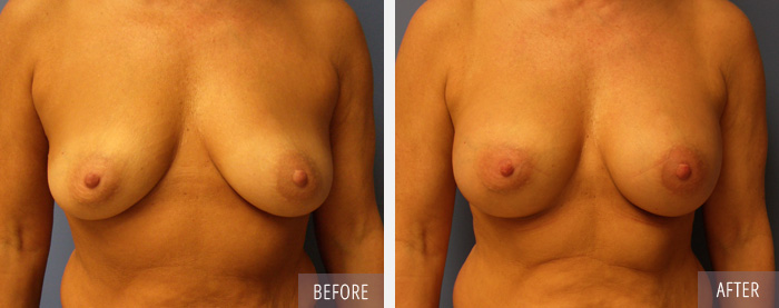 Breast Augmentation Procedure Before and After