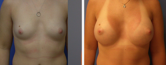Dr. Pan Breast Implants Before and After