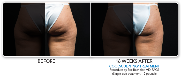 Coolsculpting RtThigh-025