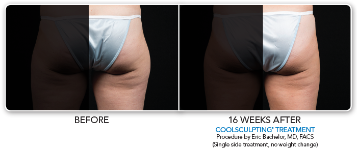 Coolsculpting RtThigh-029