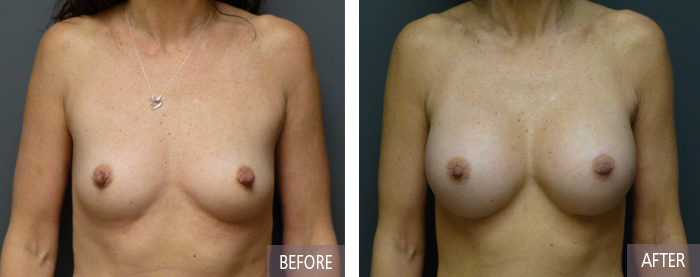 Breast Augmentation Before and After Picture