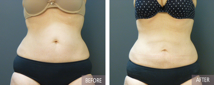 Coolsculpting before picture