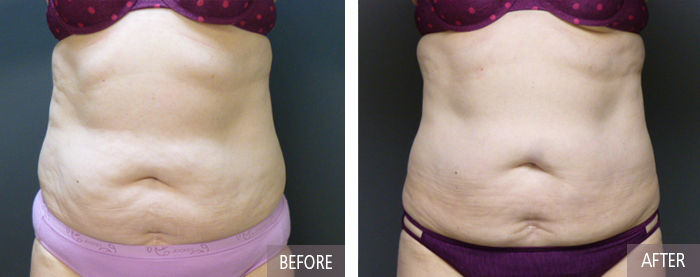 Coolsculpting after picture