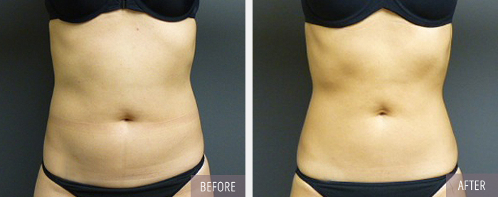 coolsculpting_before_after091713