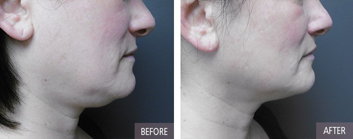 Results for Kybella
