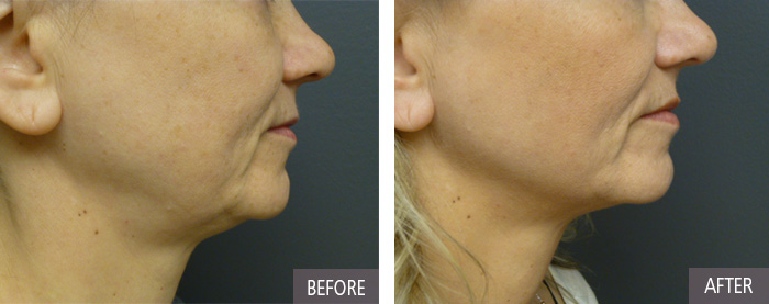 Ultherapy in CT is a non-surgical solution for your double chin