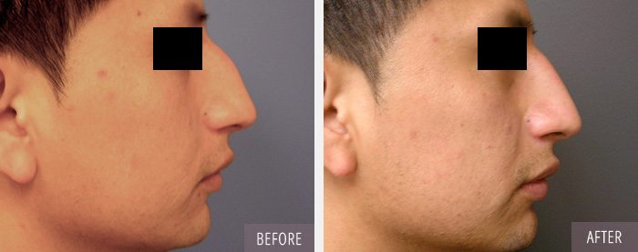 Find a . Rhinoplasty Plastic Surgeon in Connecticut