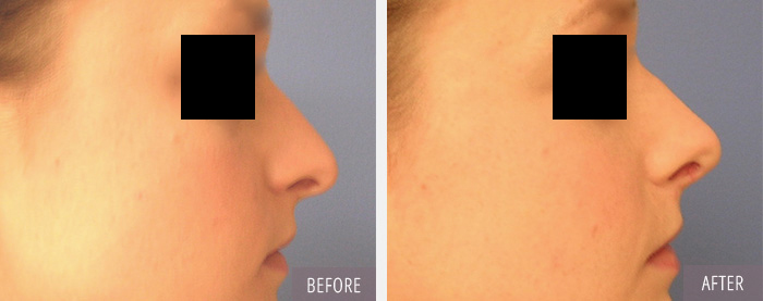 Rhinoplasty surgeon in CT