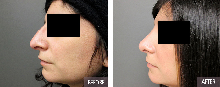 Rhinoplasty plastic surgery in CT