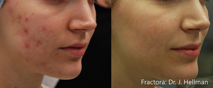 Skin Rejuvenation | ESANA Plastic Surgery Center and MedSpa