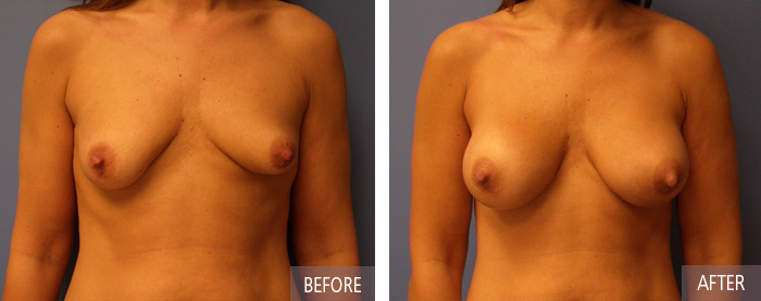 Breast Implants Before and After Picture