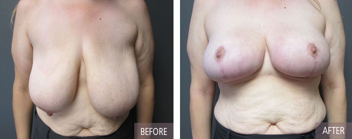 Breast lift-and-reduction before and after pictures