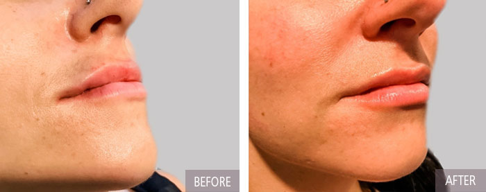 lip fillers with restylane